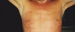 nipple_beds